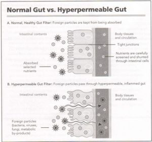Diagram of Healthy vs Leaky Gut