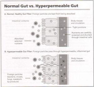 Diagram of Healthy vs Leaky Gut